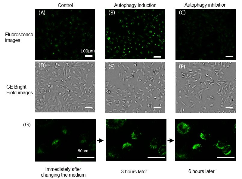 Autophagy detection