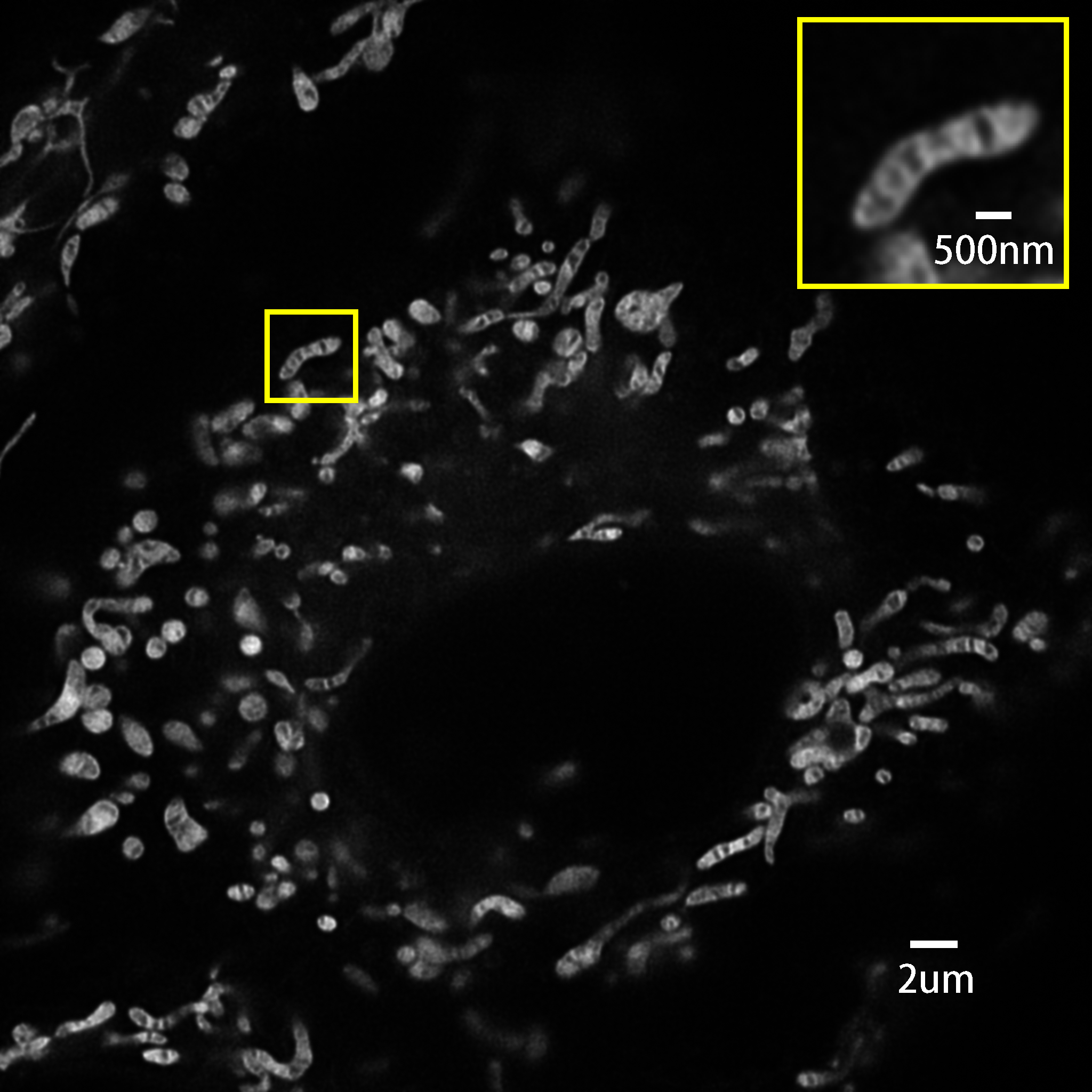 Real time live cell imaging of mitochondria (10FPS)