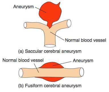 cerebral aneurysm essay